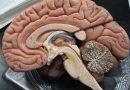 Cientistas concluem que lítio reverte males de radiação no cérebro<BR><BR>